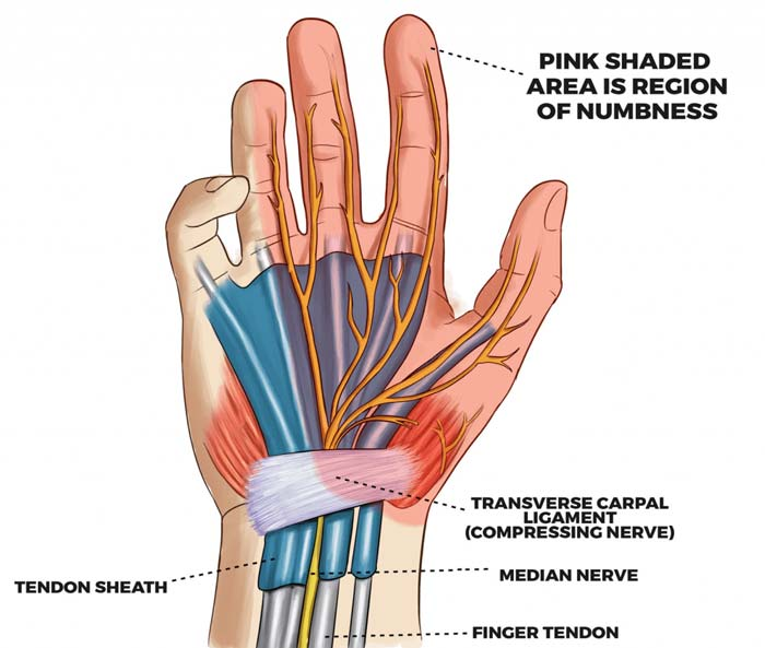 carpal tunnel relief fast