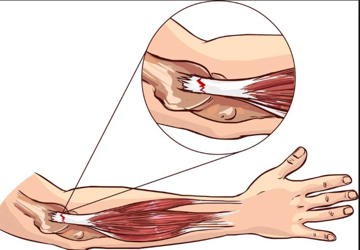 Extensor Elbow Tendonitis Elbow