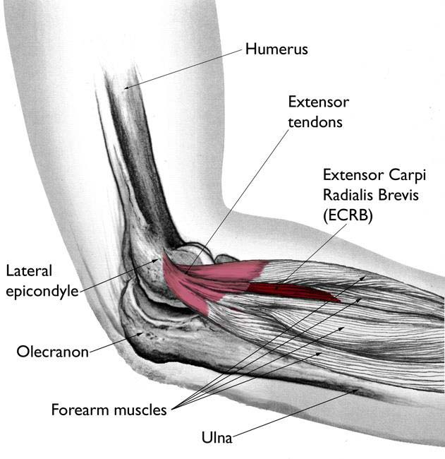 Diagram Of Tendons In Elbow