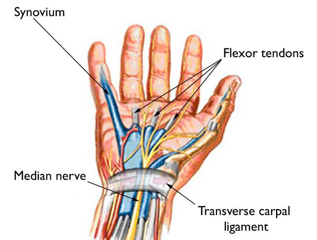 Relieve Wrist Pain Quickly and Safely